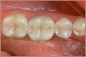 After photo of 3 teeth wtih compositie fillings