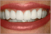 Photo of teeth after teeth whitening