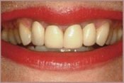 Photo of teeth before teeth whitening.