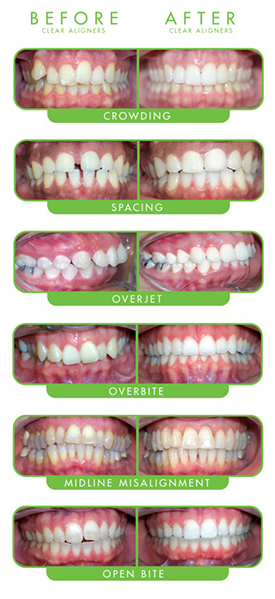 Images of ClearCorrect before and after cases