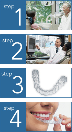 Steps to getting Invisalign